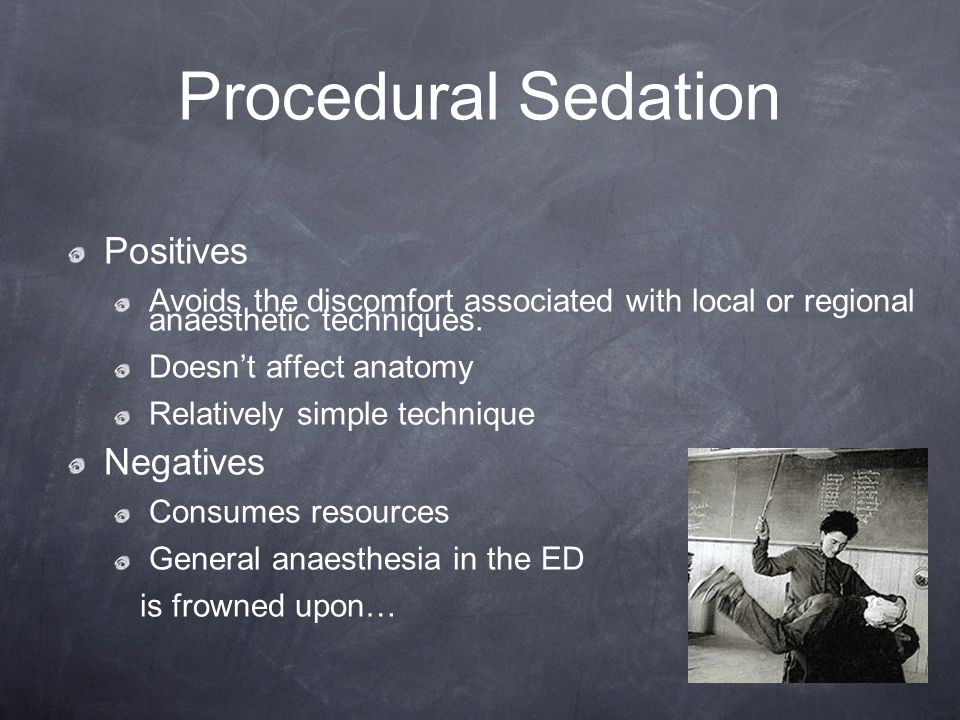 Procedural Sedation Positives Negatives