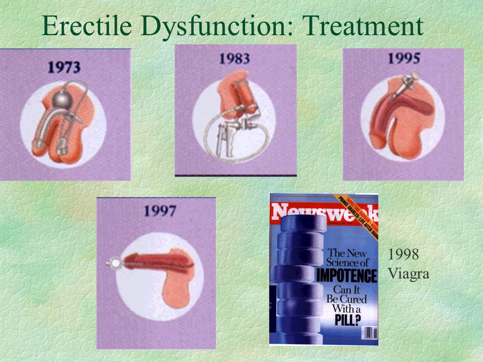 Erectile Dysfunction: Treatment
