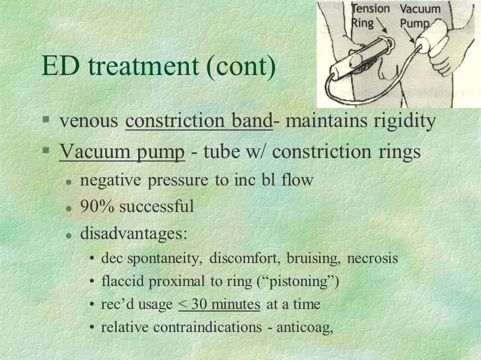 ED treatment (cont) venous constriction band- maintains rigidity