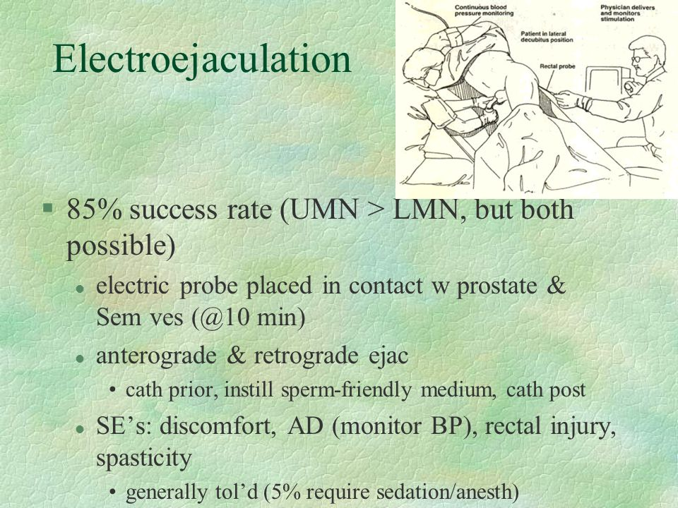 Electroejaculation 85% success rate (UMN > LMN, but both possible)