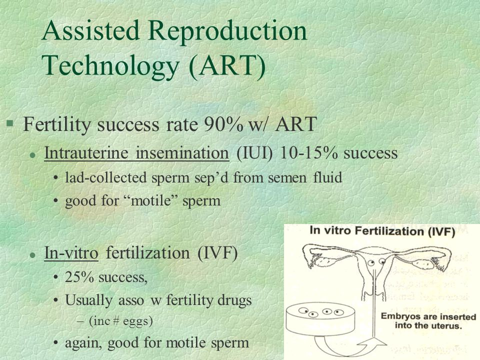 Assisted Reproduction Technology (ART)