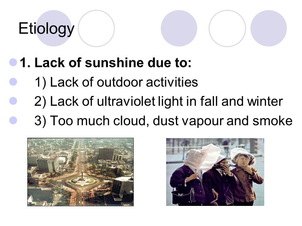 Etiology 1. Lack of sunshine due to: 1) Lack of outdoor activities