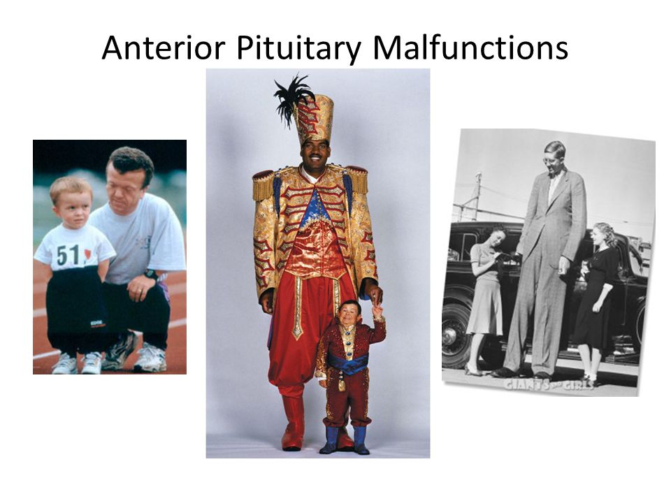 Anterior Pituitary Malfunctions