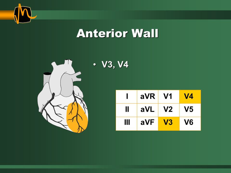 Anterior Wall V3, V4 I II III aVR aVL aVF V1 V2 V3 V4 V5 V6