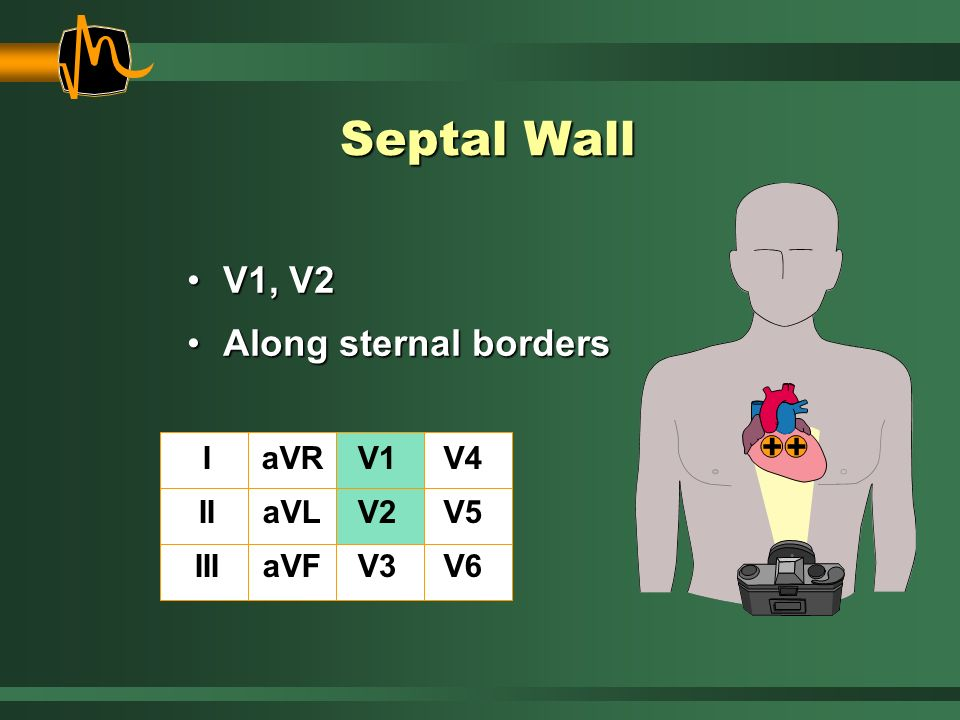 Septal Wall V1, V2 Along sternal borders I II III aVR aVL aVF V1 V2 V3