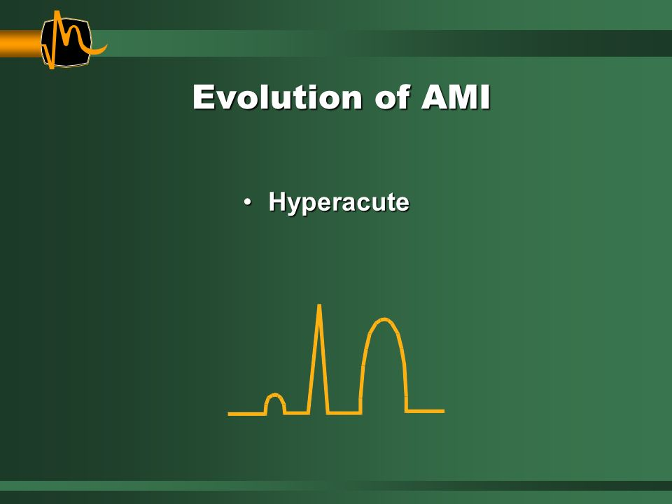 Evolution of AMI Hyperacute