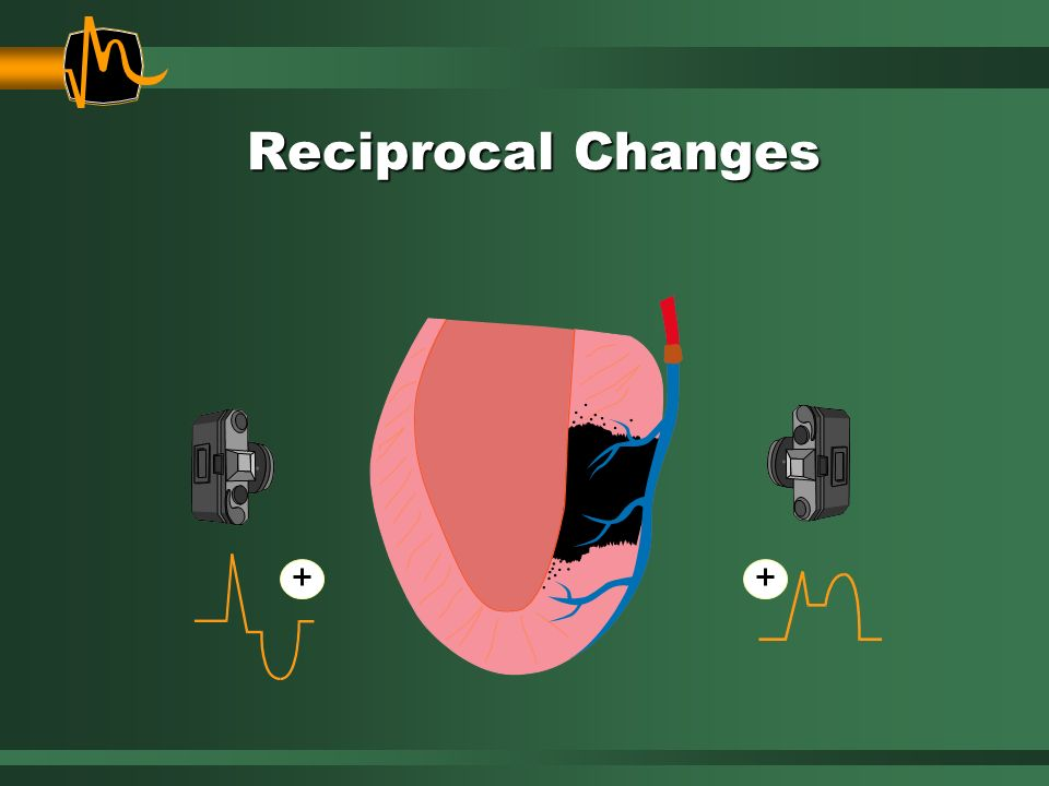 Reciprocal Changes We have been looking for infarct based upon the presence of ST elevation.