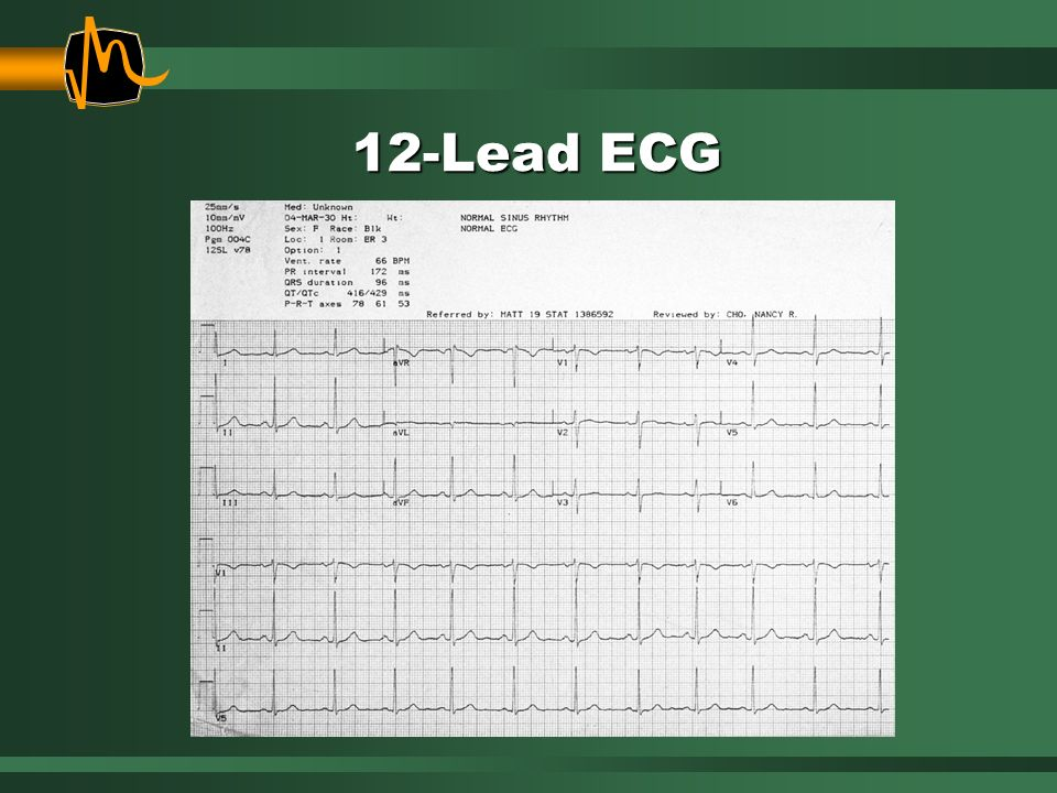 12-Lead ECG Some of you may be wondering how anyone can make a sound interpretation with only 2.5 seconds shown in each lead.