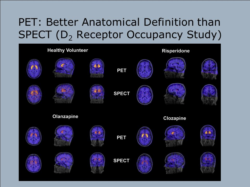PET: Better Anatomical Definition than SPECT (D2 Receptor Occupancy Study)