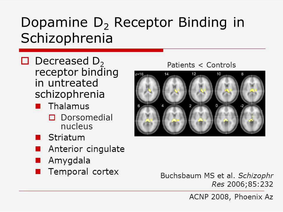 Dopamine D2 Receptor Binding in Schizophrenia