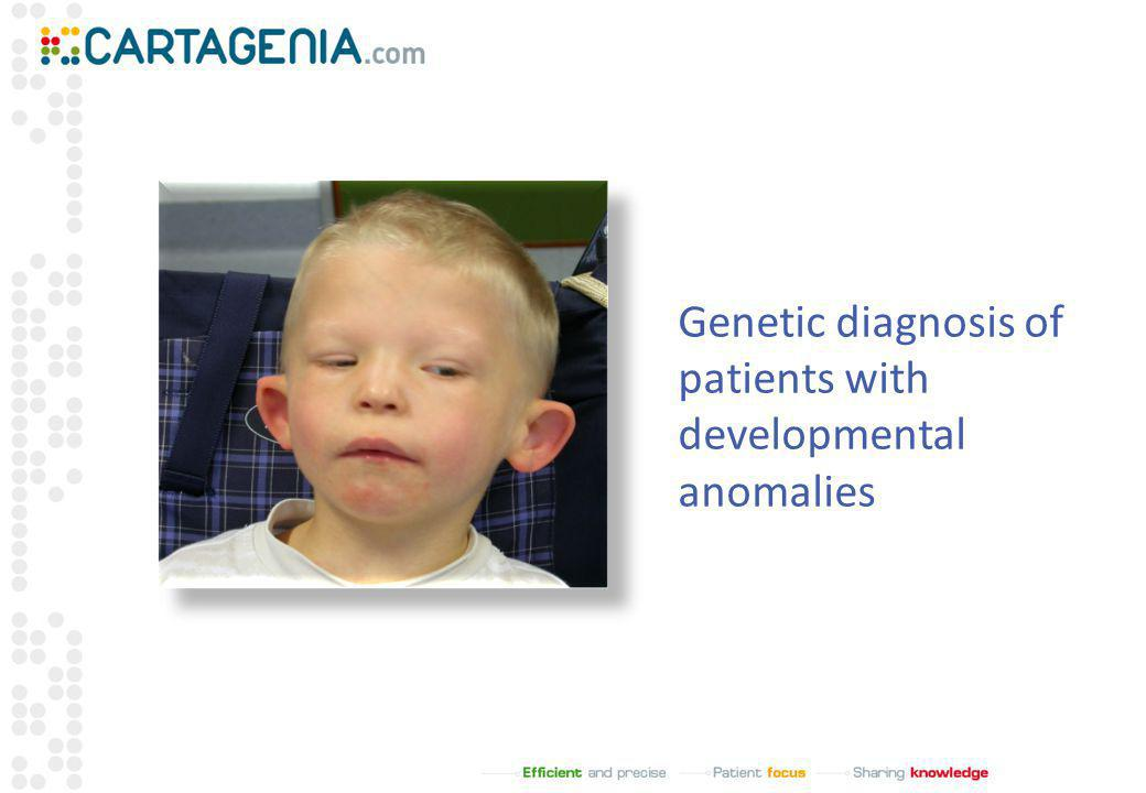 Genetic diagnosis of patients with developmental anomalies