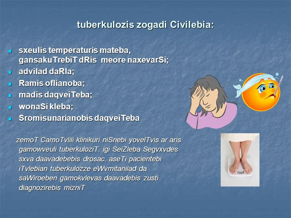 tuberkulozis zogadi Civilebia: