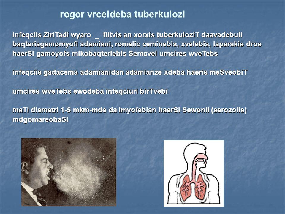 rogor vrceldeba tuberkulozi