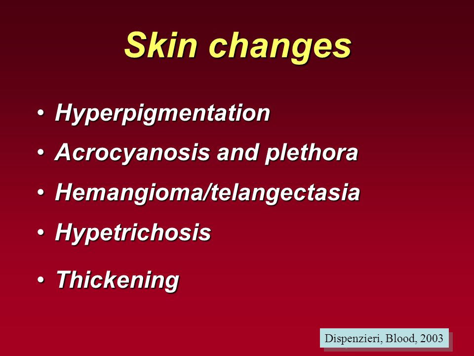 Skin changes Hyperpigmentation Acrocyanosis and plethora