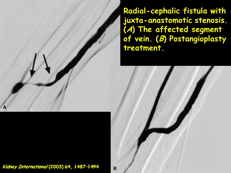 Radial-cephalic fistula with juxta-anastomotic stenosis