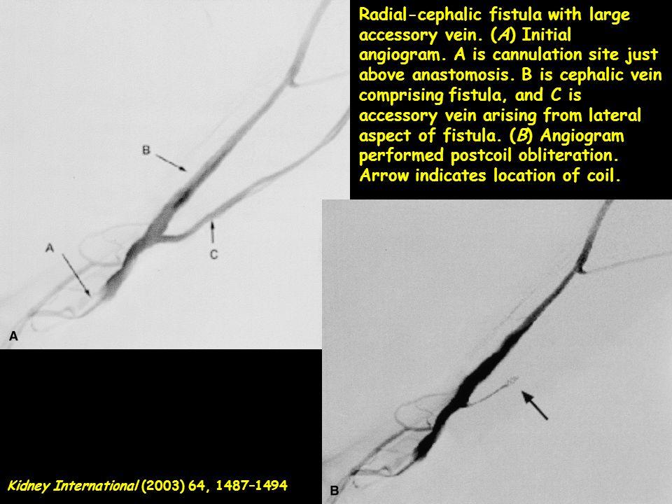 Radial-cephalic fistula with large accessory vein