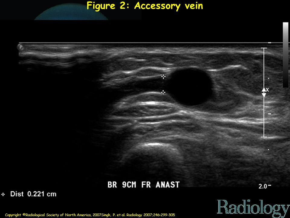 Figure 2: Accessory vein