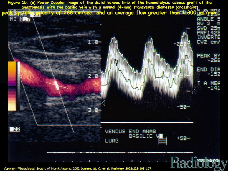Figure 1b. (a) Power Doppler image of the distal venous limb of the hemodialysis access graft at the anastomosis with the basilic vein with a normal (4-mm) transverse diameter (crosshairs)