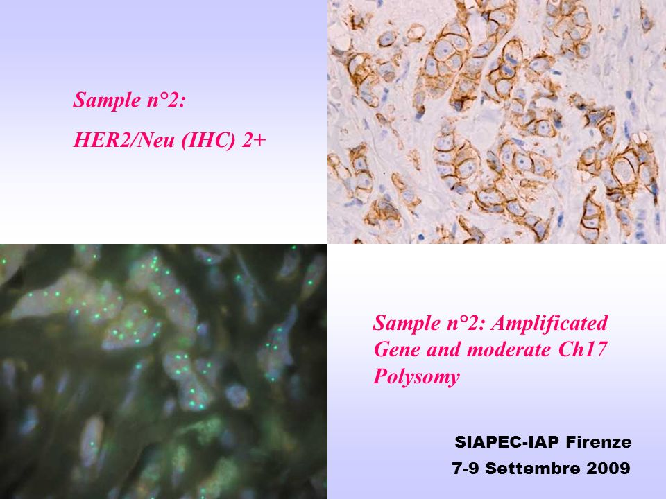 Sample n°2: Amplificated Gene and moderate Ch17 Polysomy