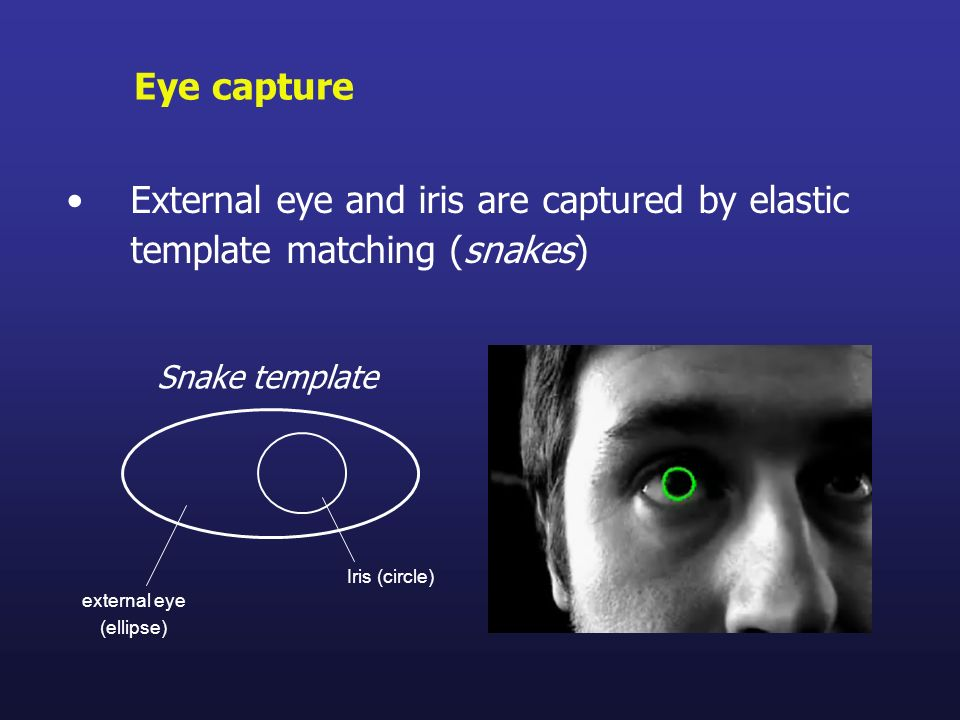 Eye captureExternal eye and iris are captured by elastic template matching (snakes) Snake template.