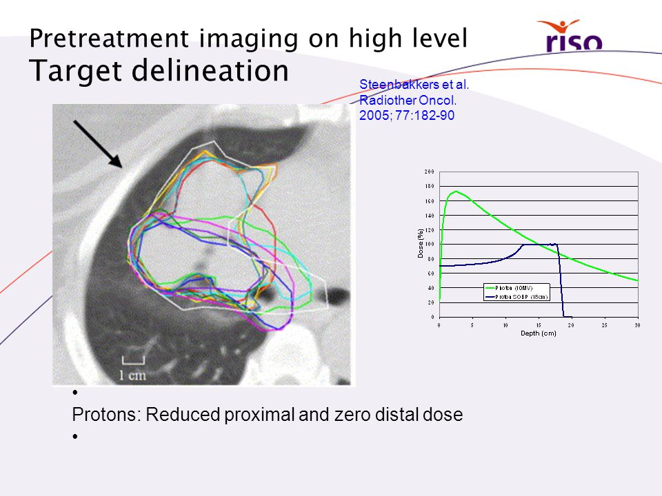 Target delineation Pretreatment imaging on high level