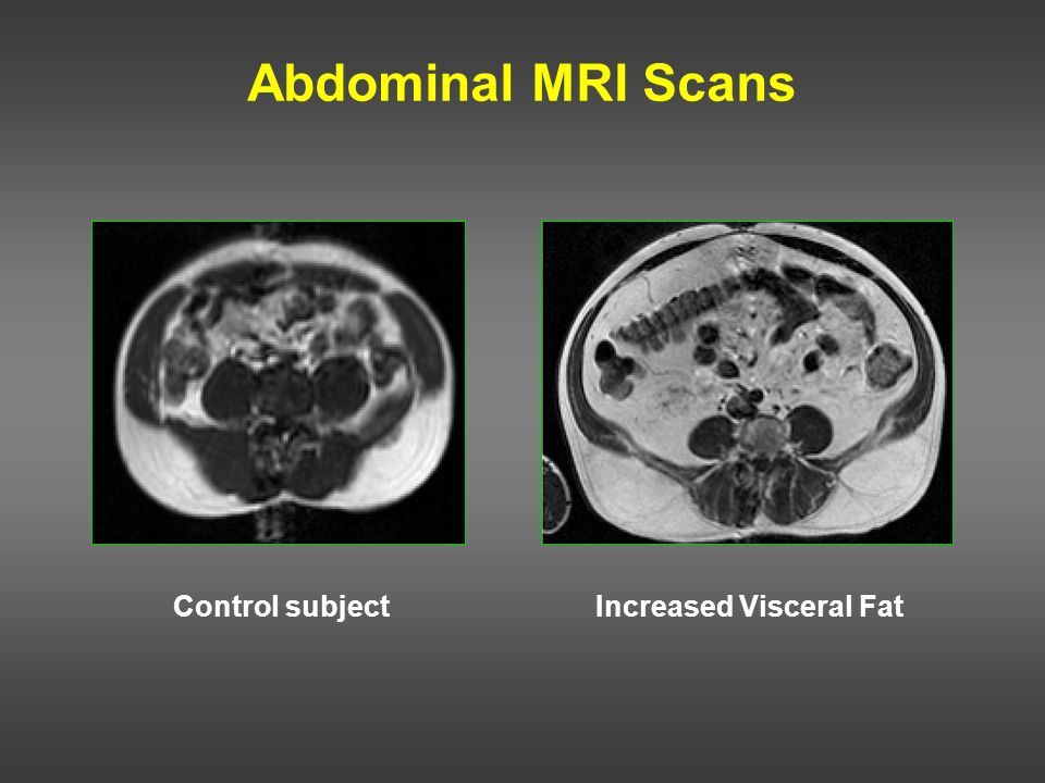 Abdominal MRI Scans Control subject Increased Visceral Fat