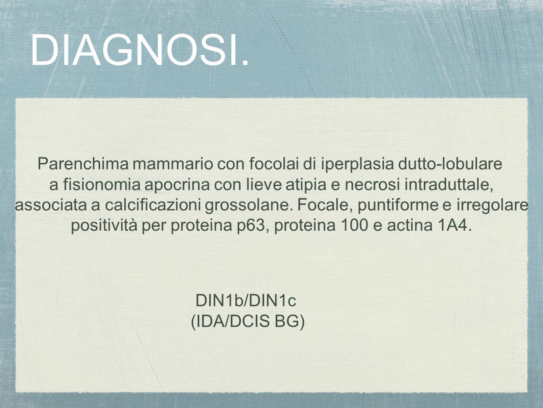DIAGNOSI. Parenchima mammario con focolai di iperplasia dutto-lobulare