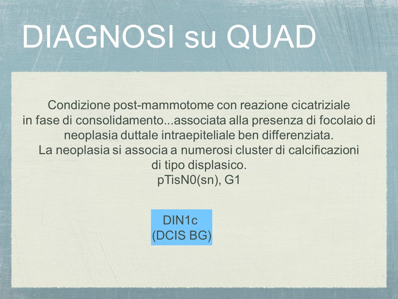 DIAGNOSI su QUAD Condizione post-mammotome con reazione cicatriziale