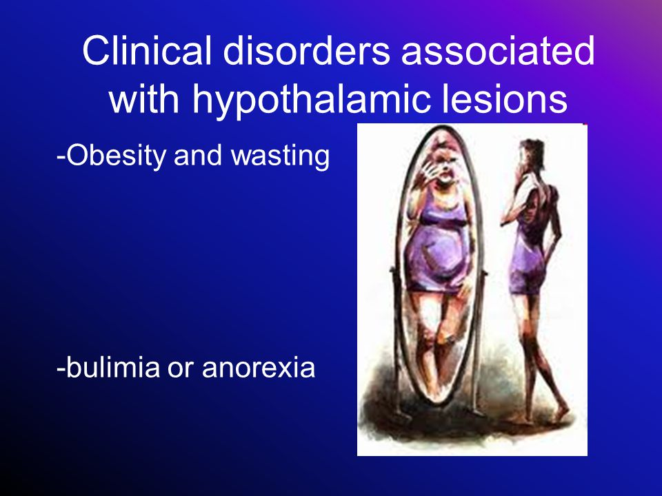 Clinical disorders associated with hypothalamic lesions