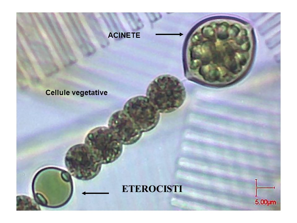 ACINETE Cellule vegetative ETEROCISTI