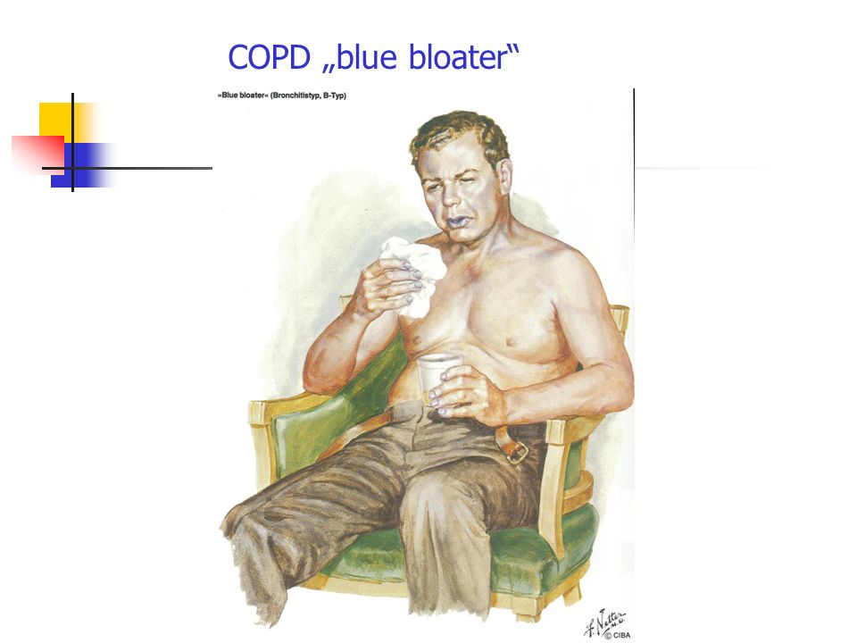 "COPD ""blue bloater"