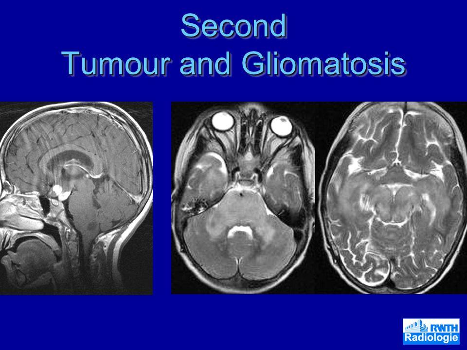 Second Tumour and Gliomatosis