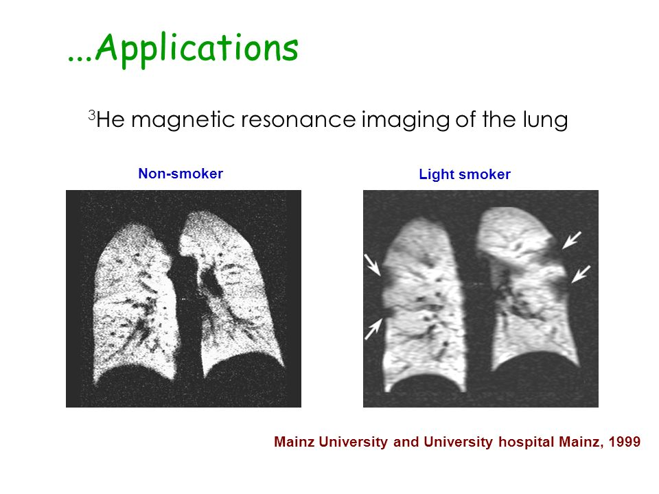 ...Applications 3He magnetic resonance imaging of the lung Non-smoker