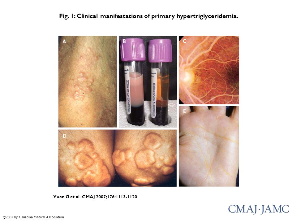 Fig. 1: Clinical manifestations of primary hypertriglyceridemia.