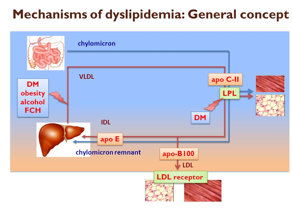 Mechanisms of dyslipidemia: General concept