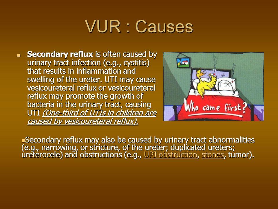VUR : Causes