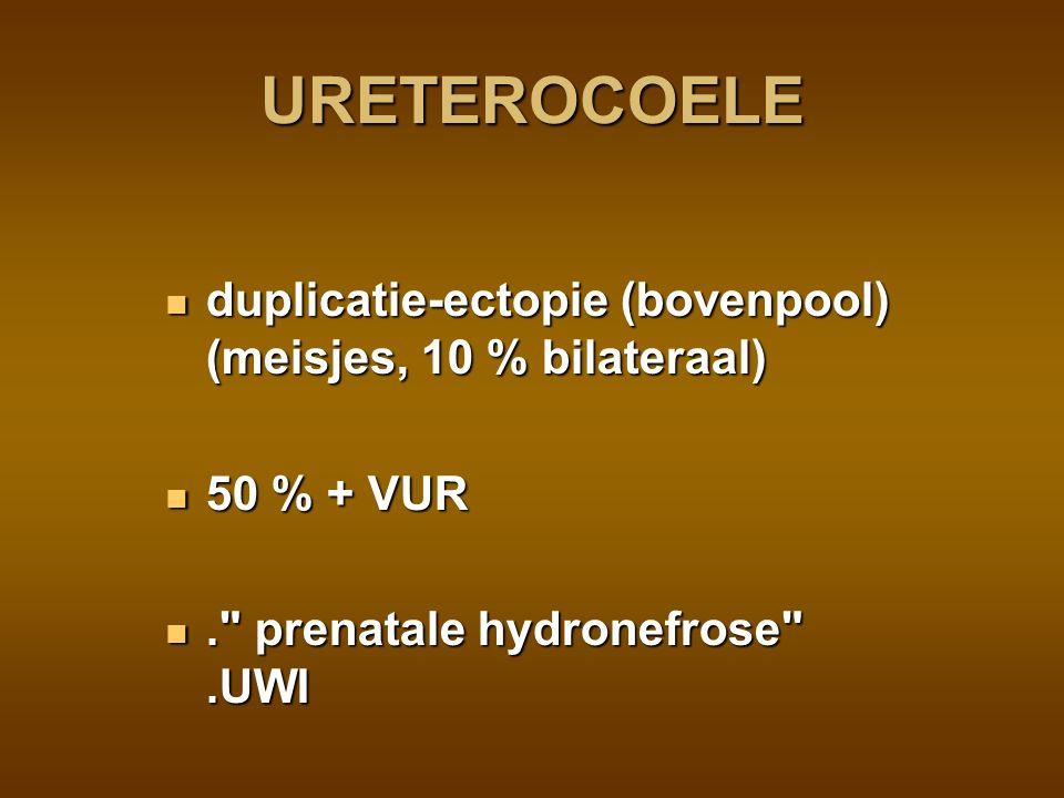 URETEROCOELE duplicatie-ectopie (bovenpool) (meisjes, 10 % bilateraal)