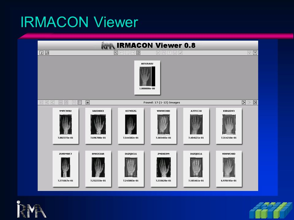 IRMACON Viewer