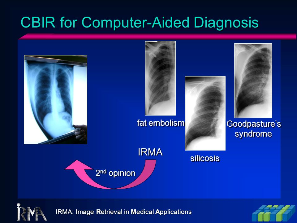 CBIR for Computer-Aided Diagnosis