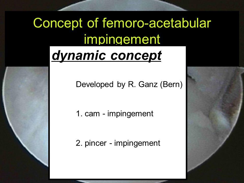Concept of femoro-acetabular impingement FAI