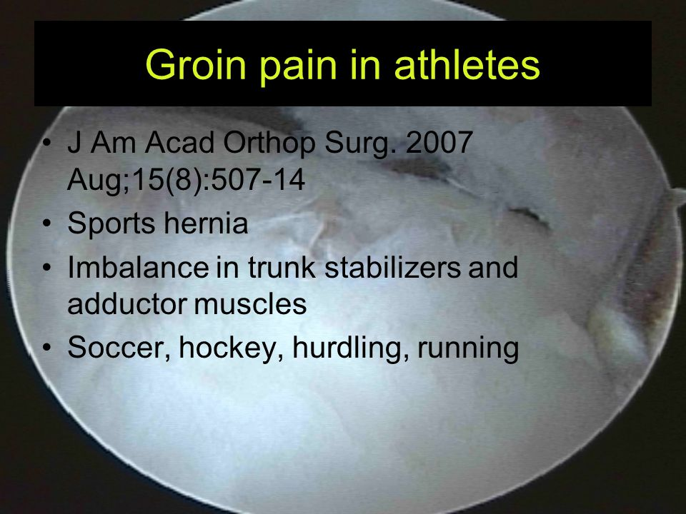 Groin pain in athletes J Am Acad Orthop Surg. 2007 Aug;15(8):507-14