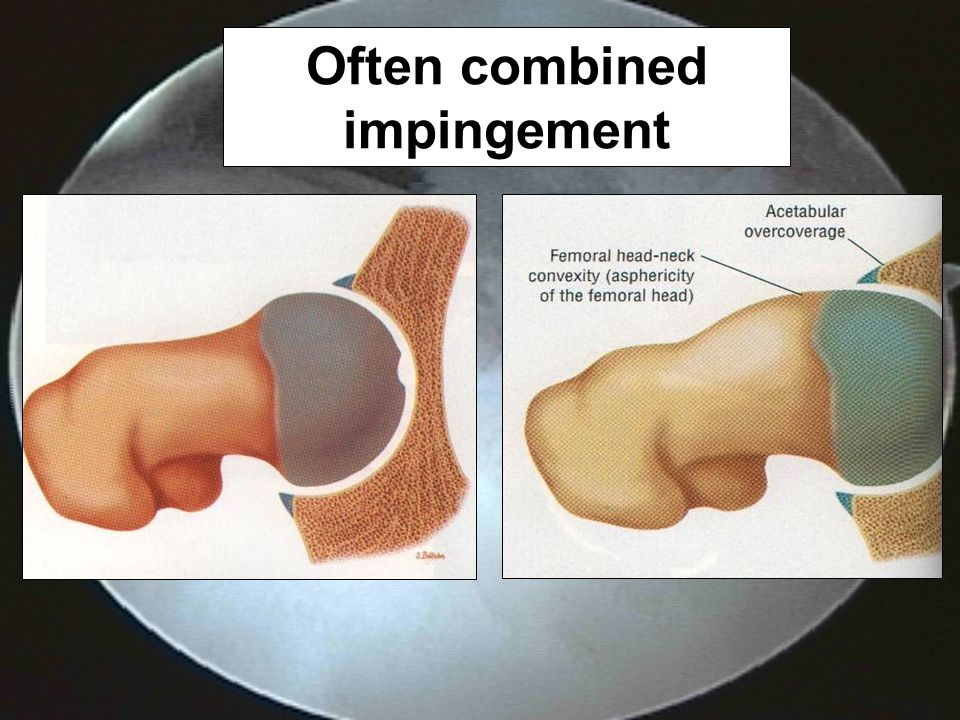 Often combined impingement