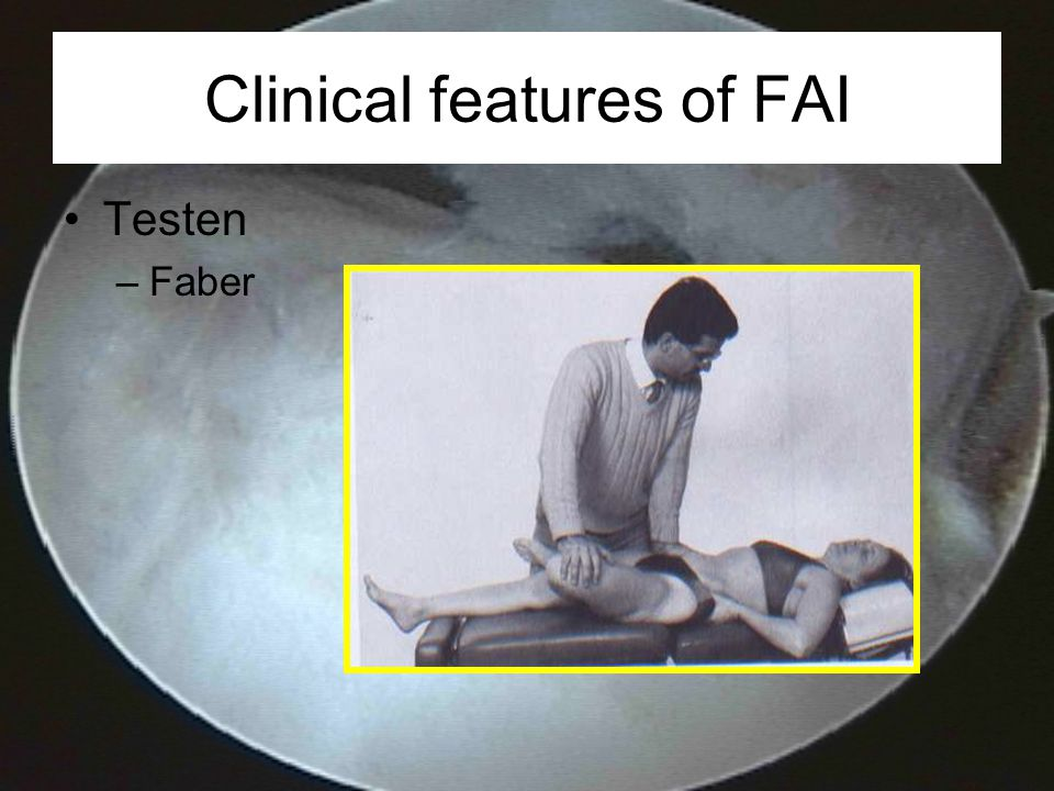 Clinical features of FAI