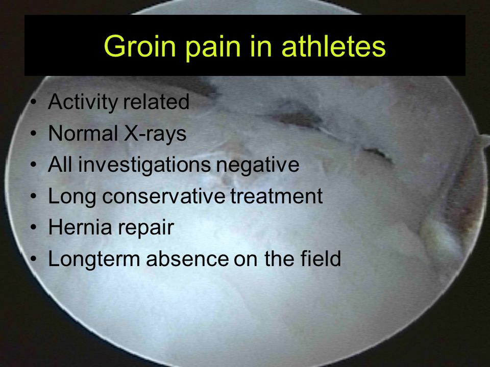 Groin pain in athletes Activity related Normal X-rays