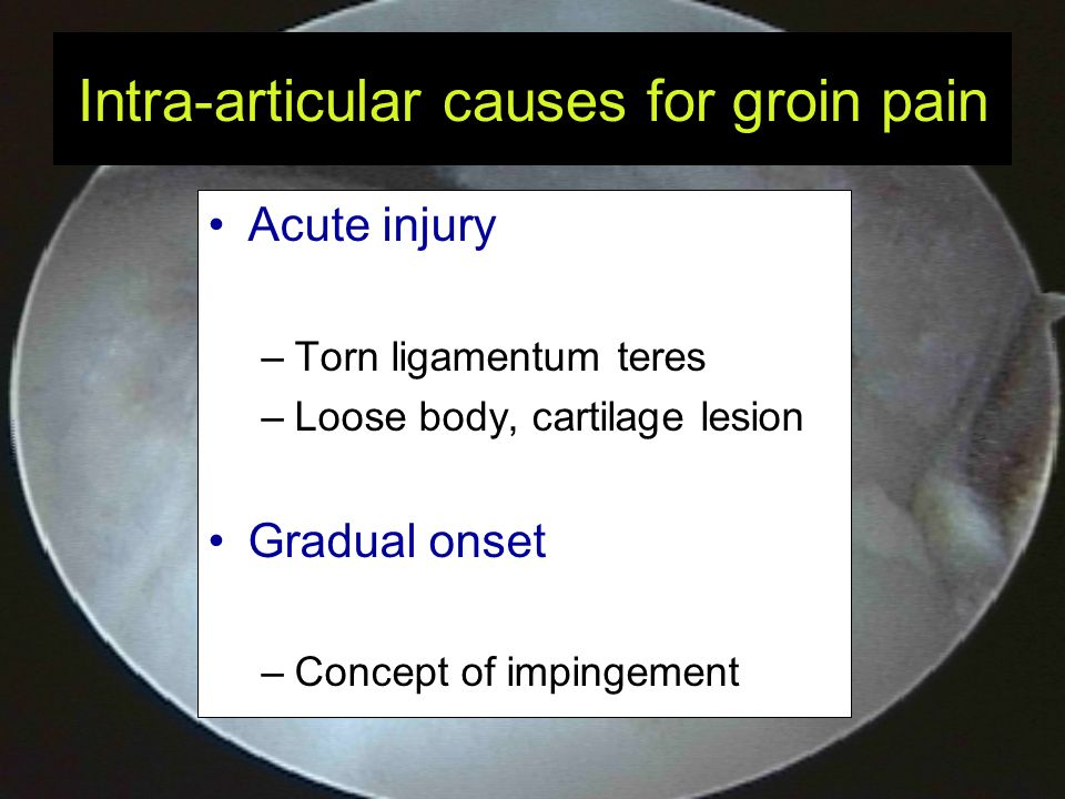 Intra-articular causes for groin pain