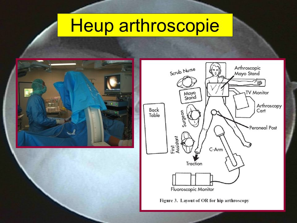 Heup arthroscopie