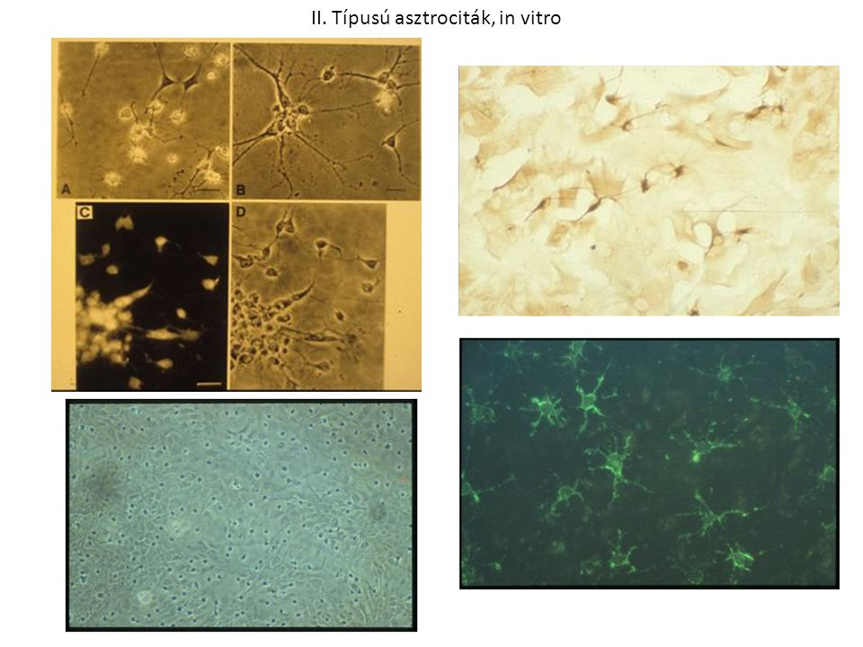 II. Típusú asztrociták, in vitro