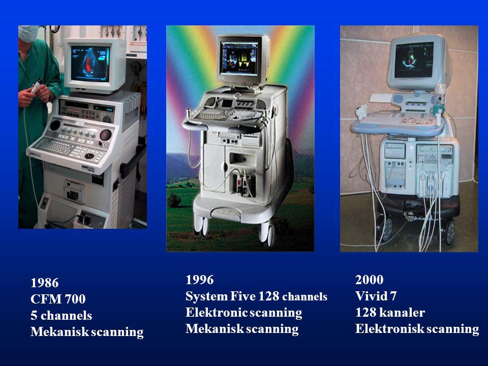 1996 System Five 128 channels. Elektronic scanning. Mekanisk scanning. 2000. Vivid 7. 128 kanaler.