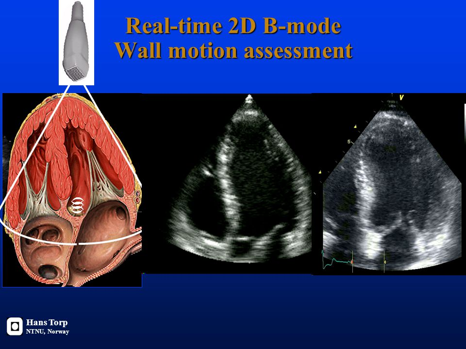 Real-time 2D B-mode Wall motion assessment