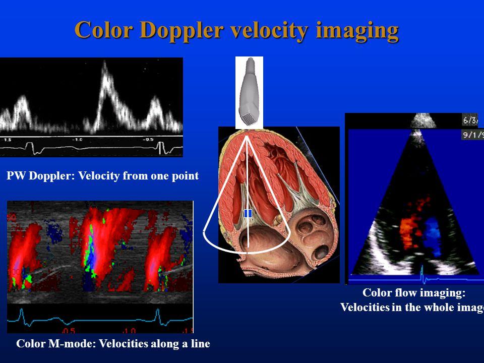Color Doppler velocity imaging